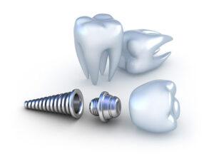 Titanium Implant Tooth 3D Model